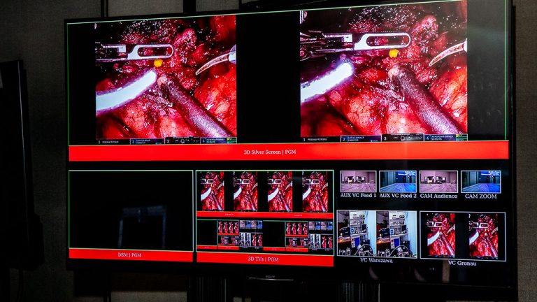 PCSS partnerem sesji Live Surgery podczas 1. Sympozjum Sekcji Urologii Robotowej PTU